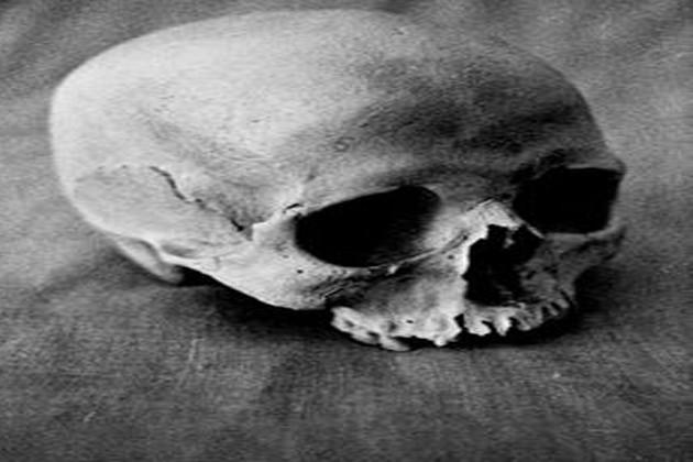 বেহালায় ভ্যাট থেকে উদ্ধার মানুষের মাথার খুলি ও হাড়গোড়